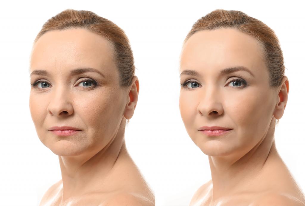 Skin Remodeling | San Anselmo Skin Tightening