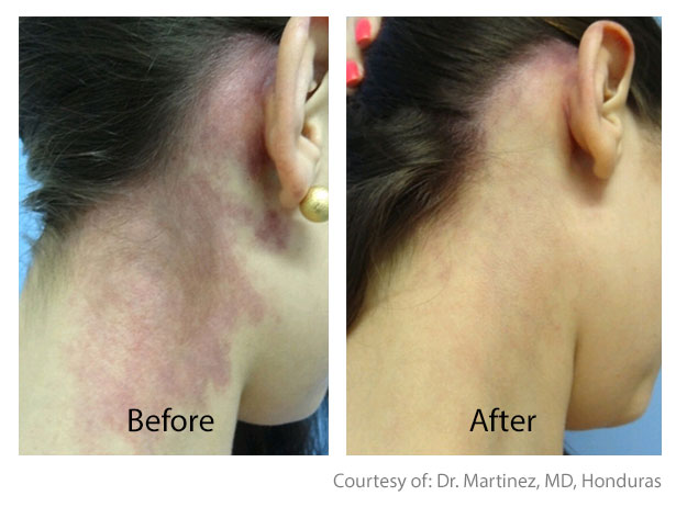 Before & After Skin Brightening | Pigment Correction San Anselmo