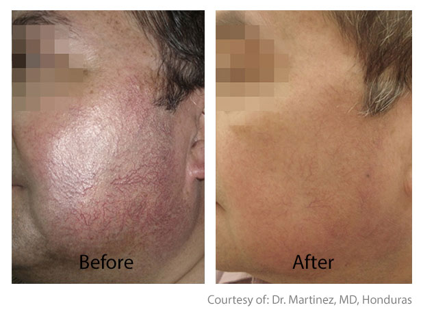 Before & After Skin Brightening | Varicose Vein Correction San Anselmo