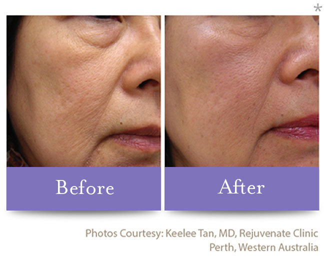 Before & After Skin Remodeling | Skin Tightening San Anselmo