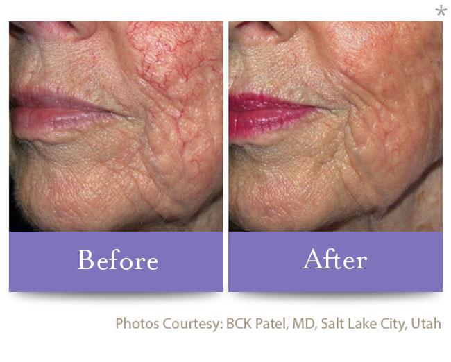 Before & After Skin Brightening | Varicose Vein Correction San Anselmo