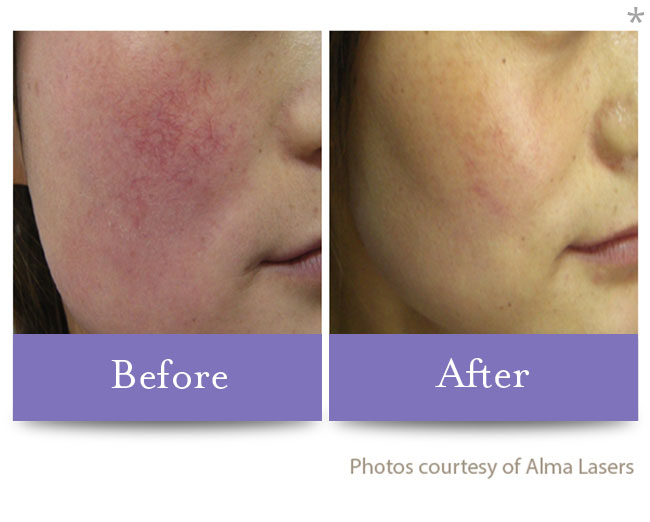 Before & After Skin Brightening | San Anselmo Varicose Vein Correction