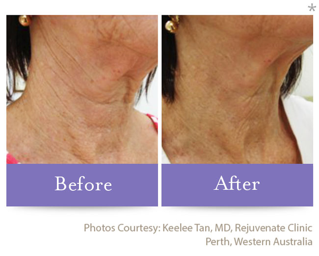 Before & After Skin Remodeling | San Anselmo Skin Tightening