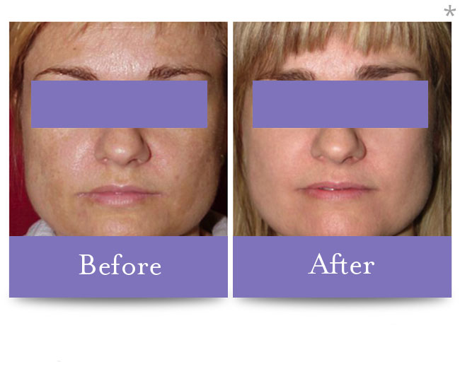 Before & After Skin Resurfacing | Skin Tone Correction San Anselmo
