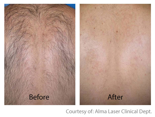 Before & After Hair Removal | Hair Removal San Anselmo