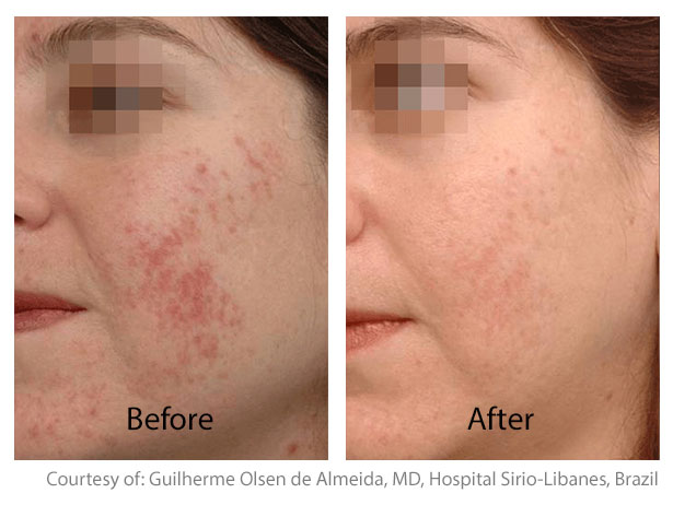 Before & After Skin Resurfacing | Acne Scarring Treatment San Anselmo