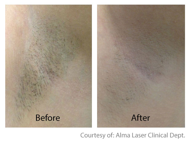 Before & After Hair Removal | San Anselmo Hair Removal