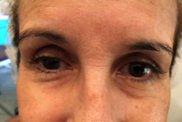 Skin Tightening and Rejuvenation