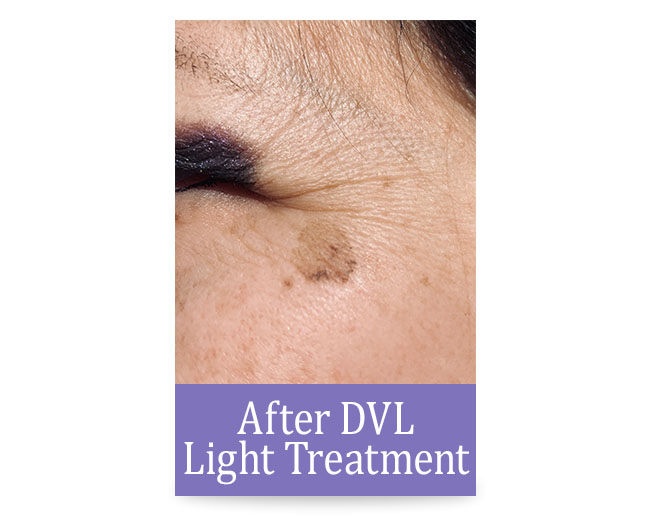 After DVL Light Treatment