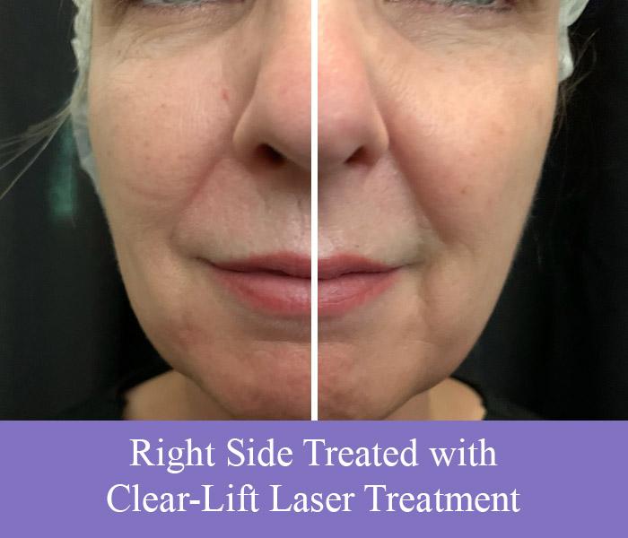clear-lift-laser-treatment